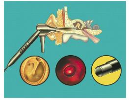 Аспирационные электроды для миринготомии