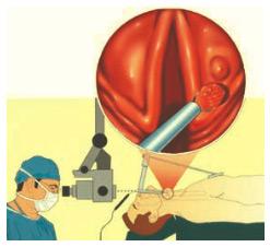 Специальные электроды для операций на гортани